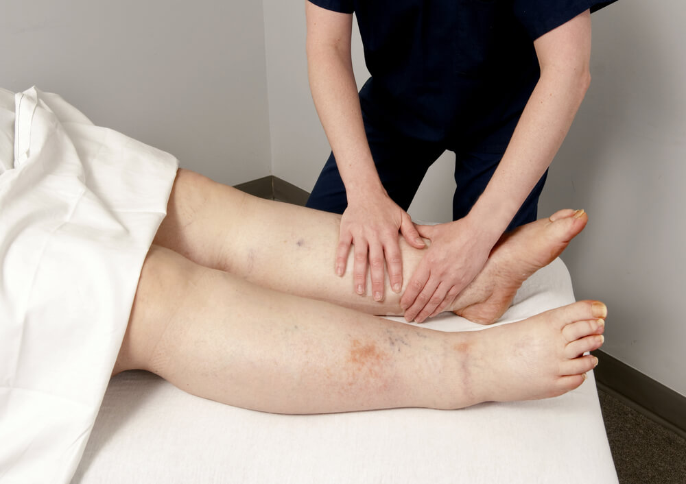 Treatment for Lymphedema