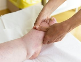 Lymphedema Physical Therapy